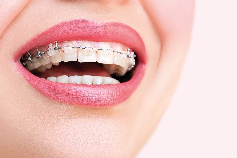 Consulta de Ortodontia