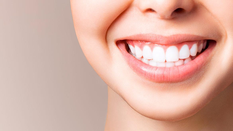 Clínica Médica e Dentária de paranhos - branqueamento dentario