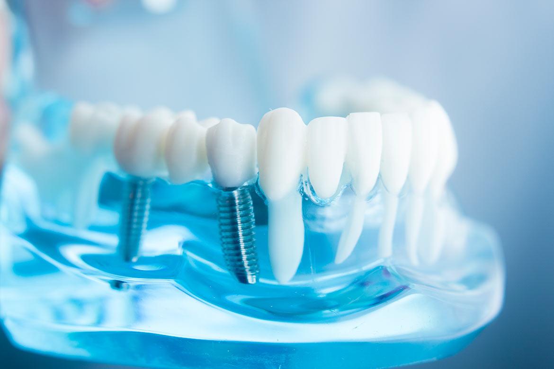 Clínica Médica e Dentária de paranhos - implantologia